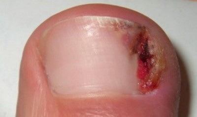 Лечить ногти малавитом